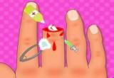 العاب تركيب الاصبع المقطوع