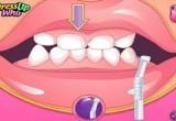 العاب تنظيف اسنان البنات الجميلة