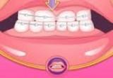العاب تركيب تقويم الاسنان عند الطبيب