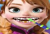 لعبة طبيب اسنان آنا المجمدة 2